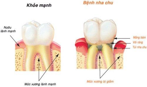 Lấy cao răng có ảnh hưởng không? Có hại đến men răng không? 1