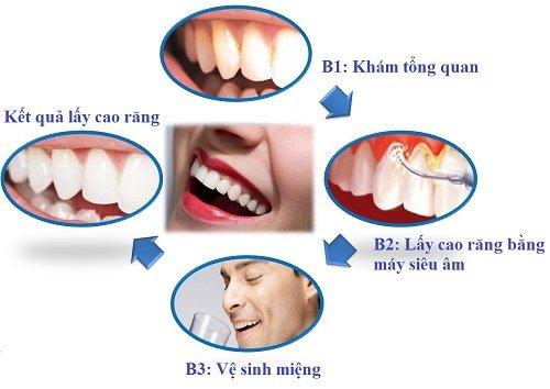 Lấy cao răng có ảnh hưởng không? Có hại đến men răng không? 2