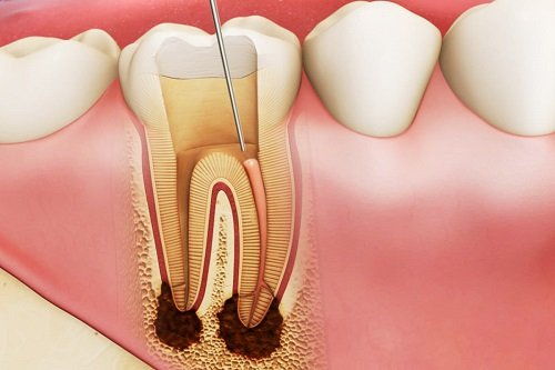 Trám răng lấy tủy có đau không? Chia sẻ từ nha khoa 1