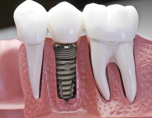 Trồng răng giả có niềng được không? Chuyên gia giải đáp 1