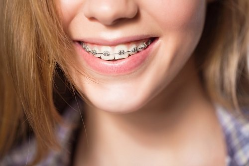 Trồng răng giả có niềng được không? Chuyên gia giải đáp 3