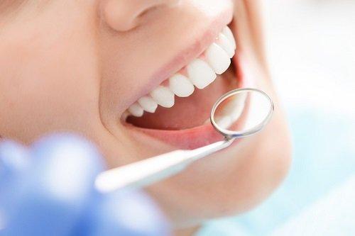 Ăn gì sau khi tẩy trắng răng? TOP thực phẩm bạn cần ưu tiên 2