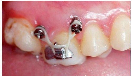 Cắm vít niềng răng bị sưng - Nguyên nhân cụ thể 2