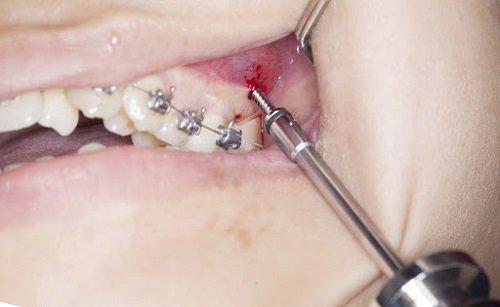 Cắm vít niềng răng bị sưng - Nguyên nhân cụ thể 3