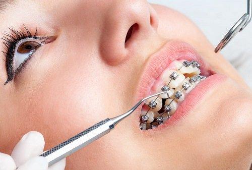 Cắm vít niềng răng có đau không? Tìm hiểu vấn đề 1
