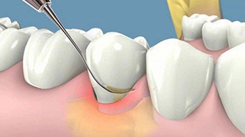 Cạo vôi răng ở đâu tốt? Một số địa chỉ bạn nên tham khảo 1