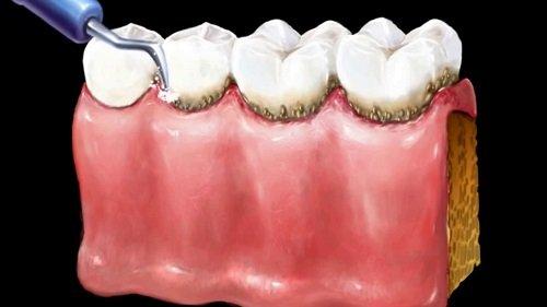 Cạo vôi răng ở đâu tốt? Một số địa chỉ bạn nên tham khảo 2