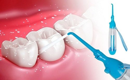 Cạo vôi răng ở đâu tốt? Một số địa chỉ bạn nên tham khảo 3