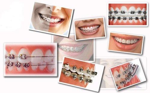 Niềng răng hàm dưới mất bao lâu là hoàn thành? 3