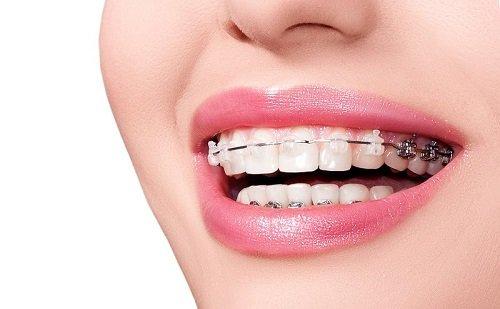 Niềng răng khớp cắn hở thực hiện như thế nào? 1