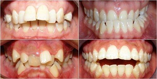 Niềng răng khớp cắn hở thực hiện như thế nào? 2