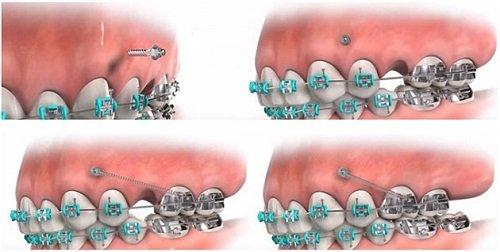 Niềng răng khớp cắn hở thực hiện như thế nào? 4