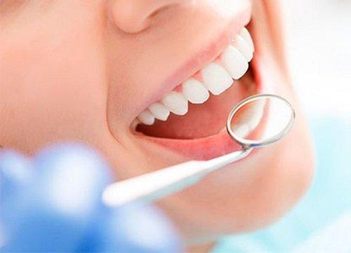 Có nên tẩy trắng răng nhiều lần không bác sĩ? 1