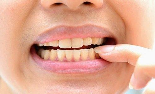 Có nên tẩy trắng răng nhiều lần không bác sĩ? 2