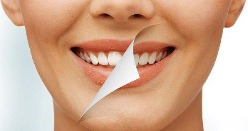 Có nên tẩy trắng răng nhiều lần không bác sĩ? 3