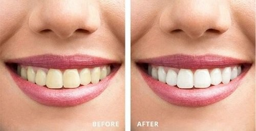 Tẩy trắng răng trong 1 tuần với giải pháp nào? 1