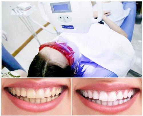 Tẩy trắng răng trong 1 tuần với giải pháp nào? 2