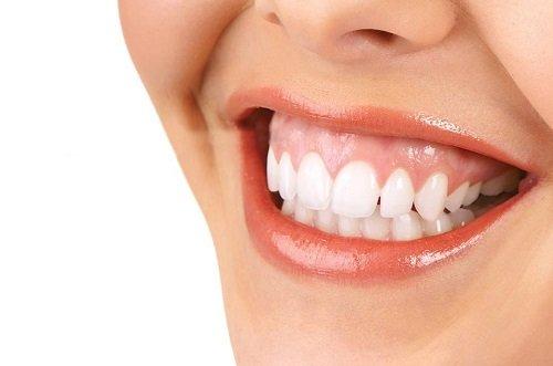 Cười hở lợi là gì? Tìm hiểu về cách điều trị 1