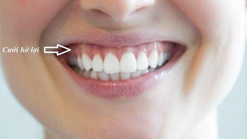 Cười hở lợi là gì? Tìm hiểu về cách điều trị 2