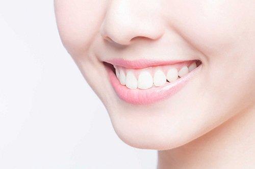 Cười hở lợi là gì? Tìm hiểu về cách điều trị 3