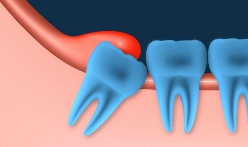Điều trị viêm lợi trùm răng khôn hiệu quả tại nhà 1