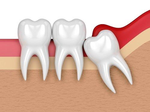 Điều trị viêm lợi trùm răng khôn hiệu quả tại nhà 2