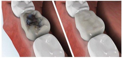 Trám răng sâu - Những điều bạn cần biết 2