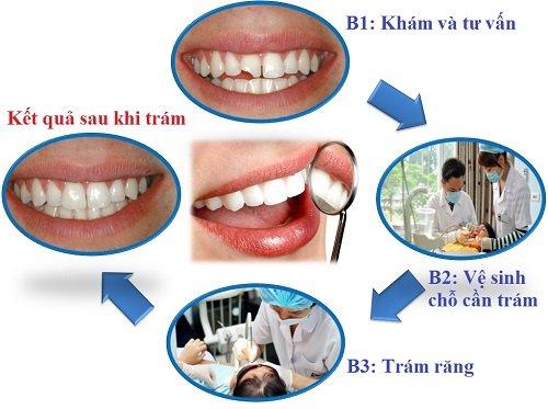 Trám răng sâu - Những điều bạn cần biết 3