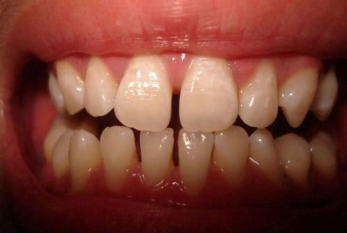 Có nên trám răng thưa không? Nha khoa lý giải 1
