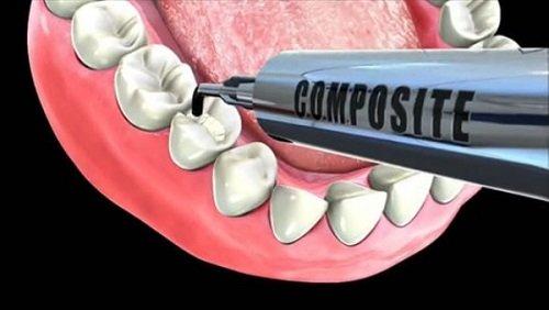 Trám răng sâu có đau không? Nha sĩ tư vấn 2