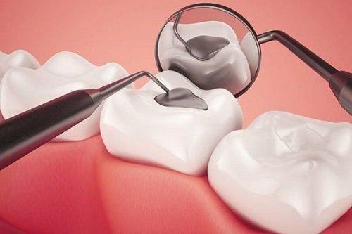 Trám răng sâu có đau không? Nha sĩ tư vấn 4