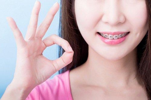 Niềng răng ăn cháo bao lâu vậy bác sĩ? 1