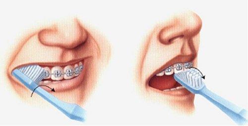 Niềng răng ăn cháo bao lâu vậy bác sĩ? 3
