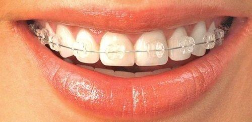 Niềng răng xong có nên tẩy trắng răng - Nha khoa tư vấn 1