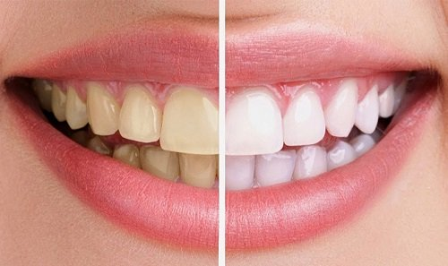 Niềng răng xong có nên tẩy trắng răng - Nha khoa tư vấn 2