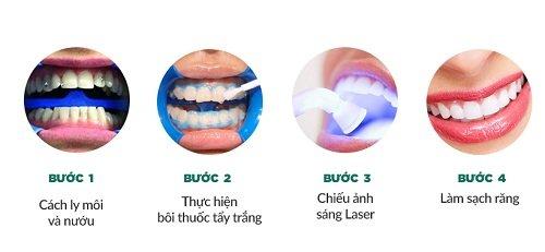 Niềng răng xong có nên tẩy trắng răng - Nha khoa tư vấn 3