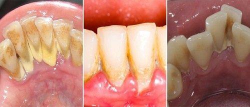 Lấy cao răng có đau hay không? Nha khoa tư vấn 1