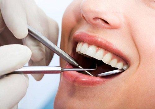 Tìm hiểu địa chỉ lấy cao răng ở đâu an toàn? 3